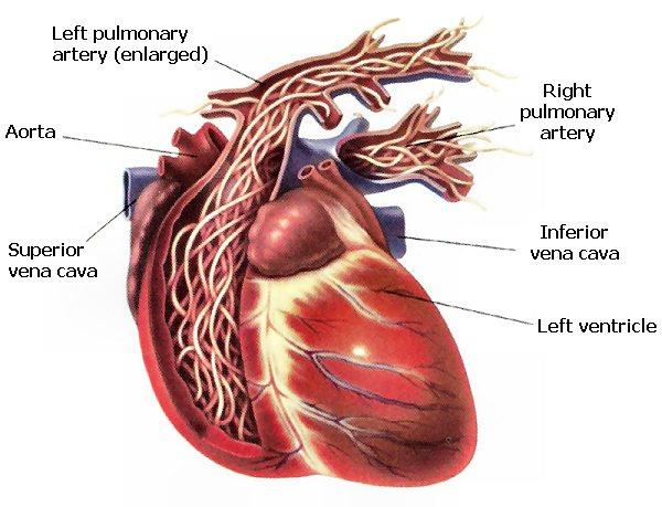 How Do Cats Get Heart Disease